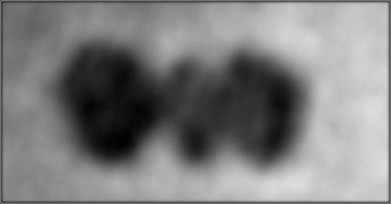 fotografía de una proteína 01